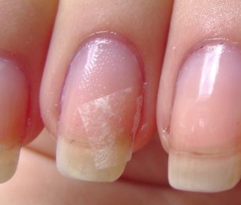 broken-nail